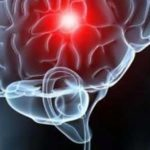 AVC: a informação e o diagnóstico rápido pode salvar a vida